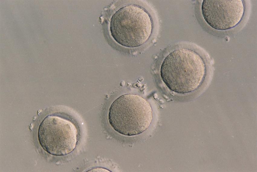 foto bij artikel Werden onrijpe menselijke eicellen tot rijpheid gebracht in een lab?