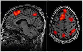 foto bij artikel Zijn zelfmoordgedachten zichtbaar op een hersenscan?